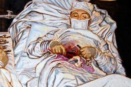 Ещё несколько примеров Medice, cura te ipsum. Уникальные операции самому себе
